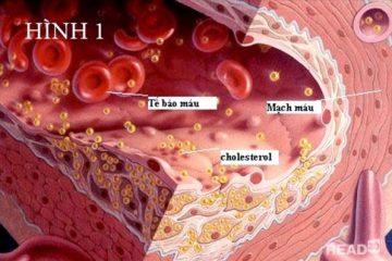 Một số bài thuốc đông y điều trị mỡ máu, gan nhiễm mỡ 5